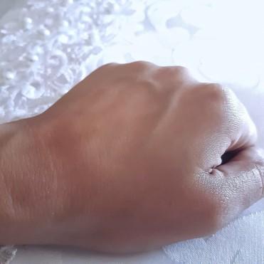 Posterior a la difuminación del aceite en la piel